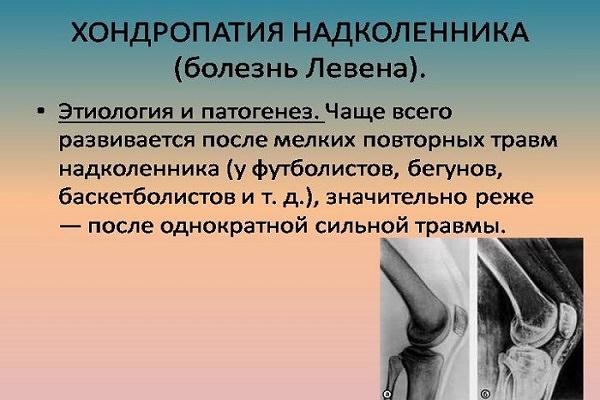 artroza articulației genunchiului 2 grade cu deplasare