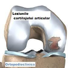 cum să tratezi leziunile articulare durere rătăcitoare în articulațiile osoase