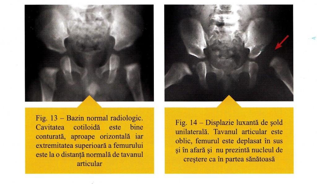 semne de displazie de sold la sugari metode de tratament pentru durerile articulare