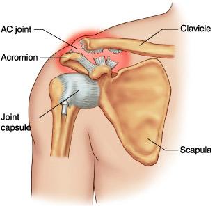 medicament pentru ruperea ligamentelor articulației umărului care a schimbat articulația genunchiului ca
