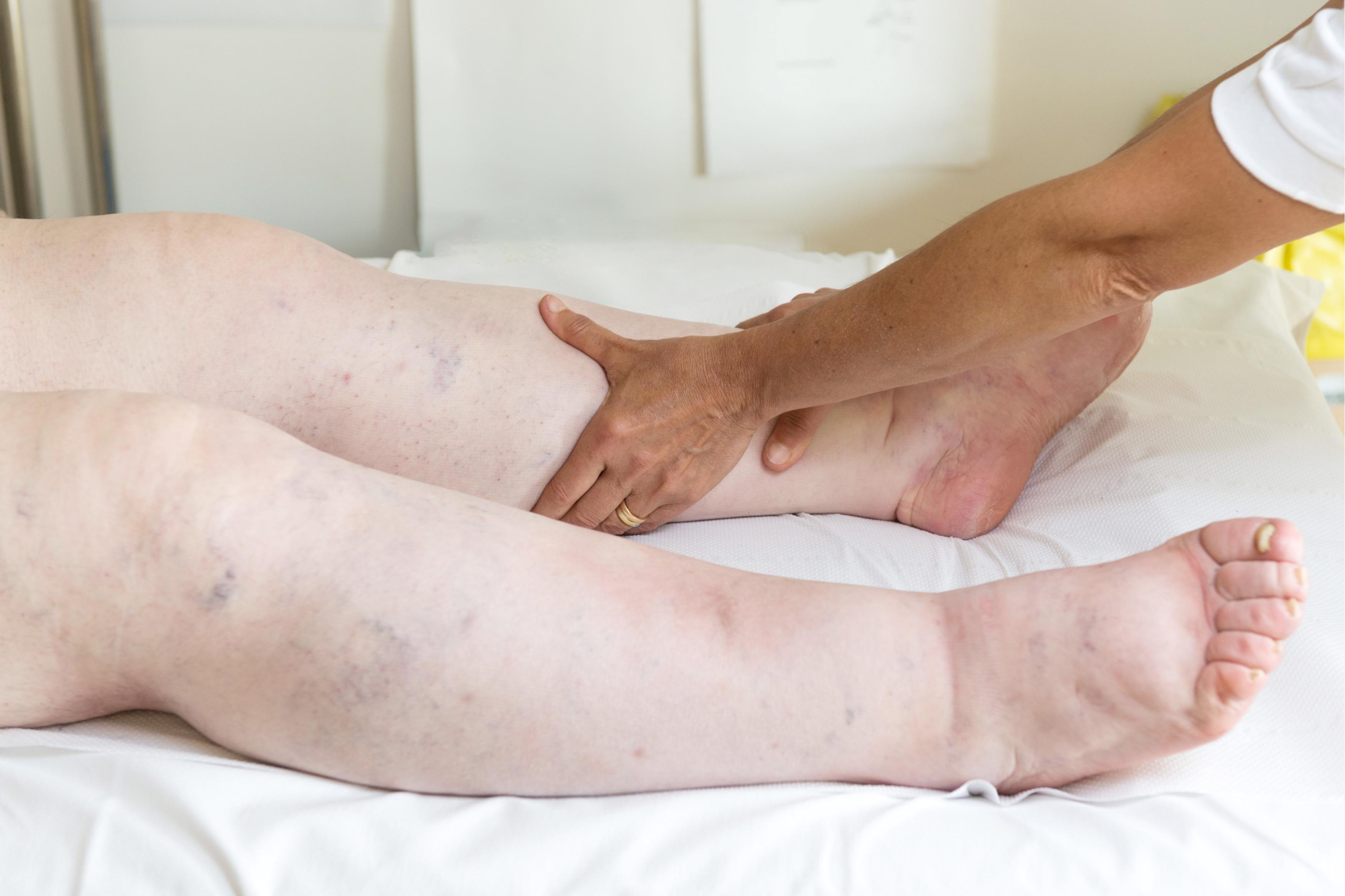 tratament pt picioare umflate si dureroase