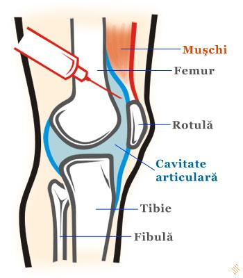 dureri de genunchi când se ridică cea mai bună articulație antiinflamatoare