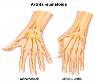 poate vindeca artrita degetelor