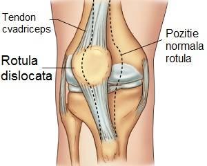 De ce iese genunchiul din articulație. Navigare principală