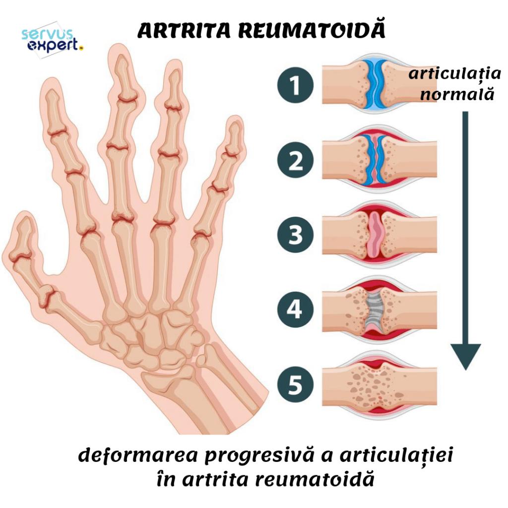 Reumatologia si bolile reumatice - Boala articulației degetelor numită