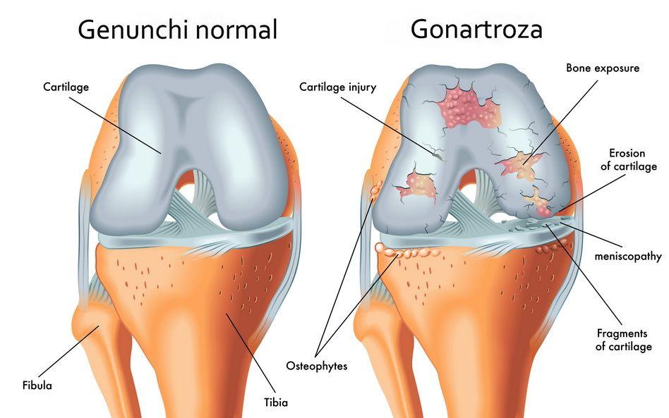 Cele mai frecvente afecţiuni ale genunchiului