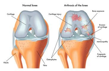 articulația genunchiului face clic și doare produs de reparație a țesutului conjunctiv