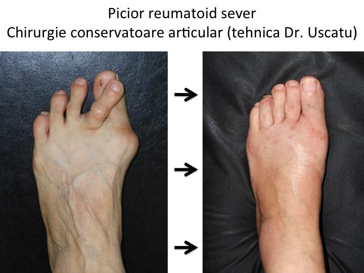 articulațiilor piciorului bolii durere în articulațiile piciorului decât pentru a trata