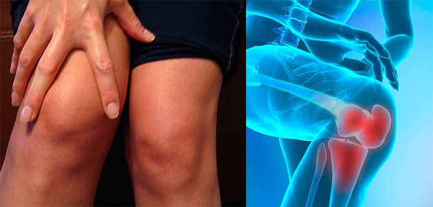 ce este prescris pentru tratamentul artrozei articulațiilor