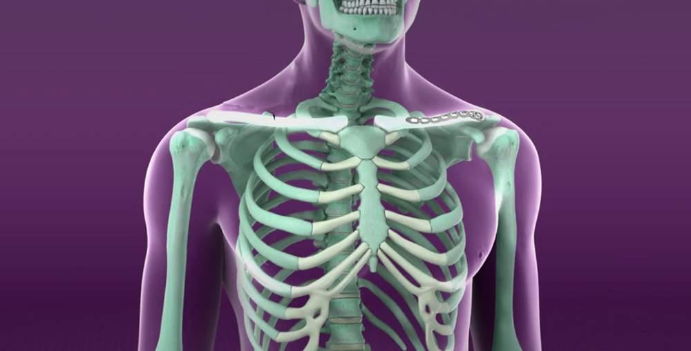 tratamentul articulației claviculare durere în articulația umărului până la cot