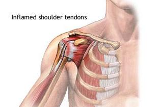 la ridicare  brațul articulației umărului doare