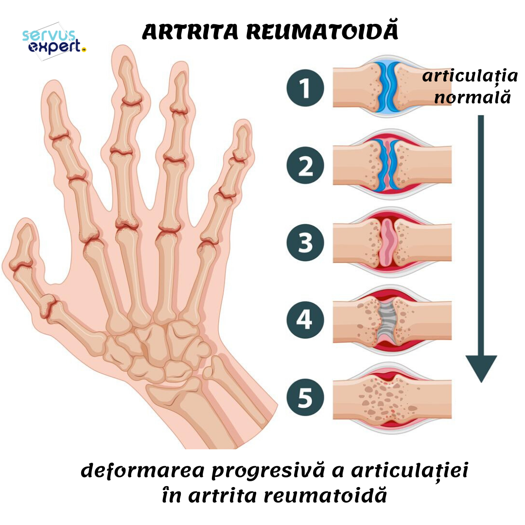 poliartrita reumatoida autoimuna