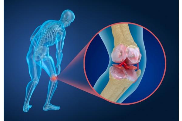 telefonând cu artroza genunchiului