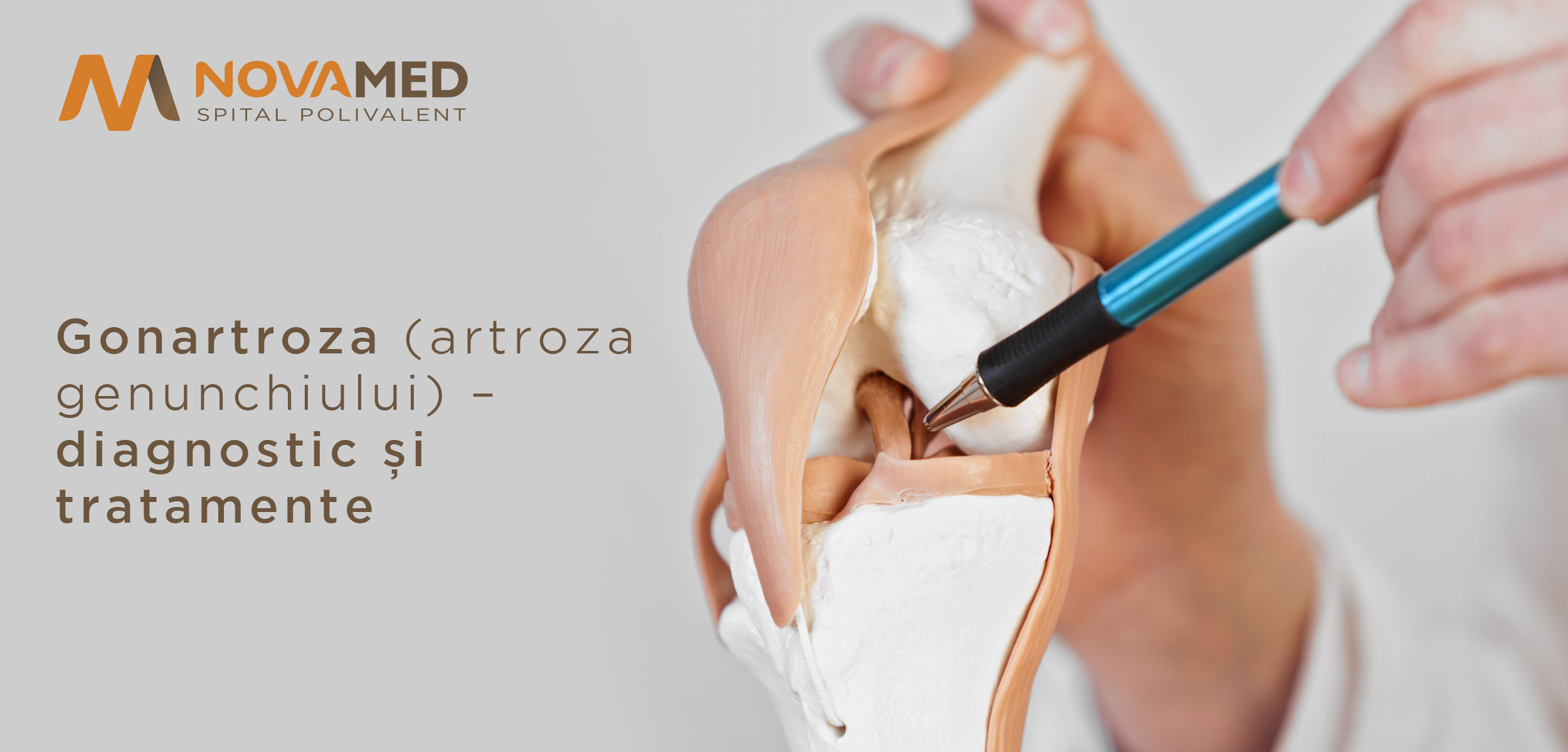 tratamentul genunchiului pentru artroză