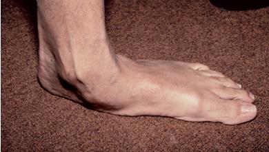 Picior plat | baremi.ro