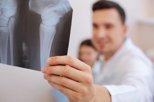artroza bolii articulare de gradul doi