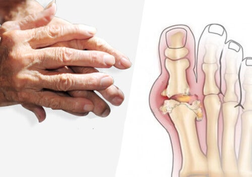 tinctură de valeriană din dureri articulare durerea cotului umăr provoacă tratament