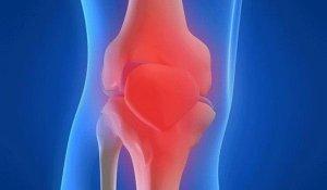 Cum să tratezi sinovita articulației genunchiului. Tratament cu artroza heviză