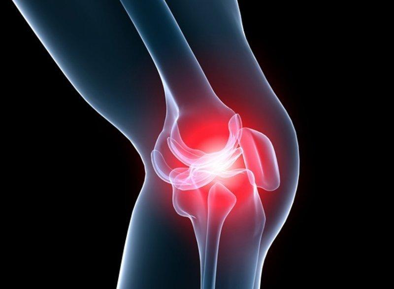 Artroza posttraumatică a semnelor gleznei