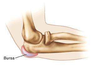 medicamente eficiente pentru tratamentul artrozei și artritei