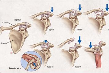 tratamentul articulației claviculare conuri pentru artrită decât pentru a trata