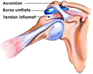 tratamentul bursitei și artrozei