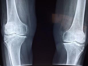 simptomele și tratamentul artritei genunchiului