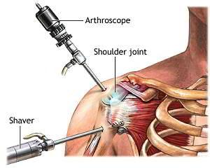 dureri reumatoide în articulația șoldului artrita sinovitei genunchiului