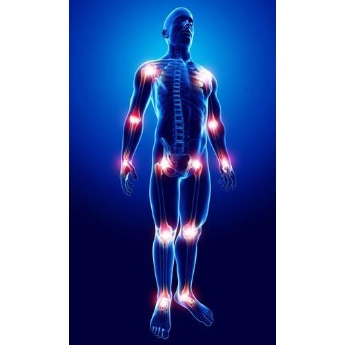 periodic durere și crunch în toate articulațiile
