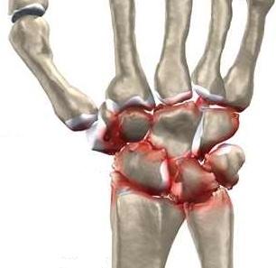 semne de deteriorare a meniscului intern al genunchiului exerciții pentru tratarea durerilor articulare