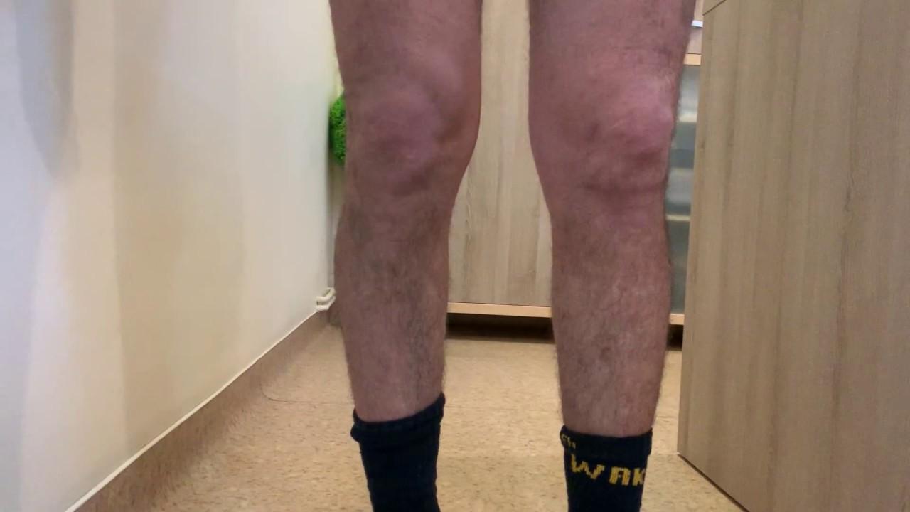 osteoartroza unguent a genunchiului