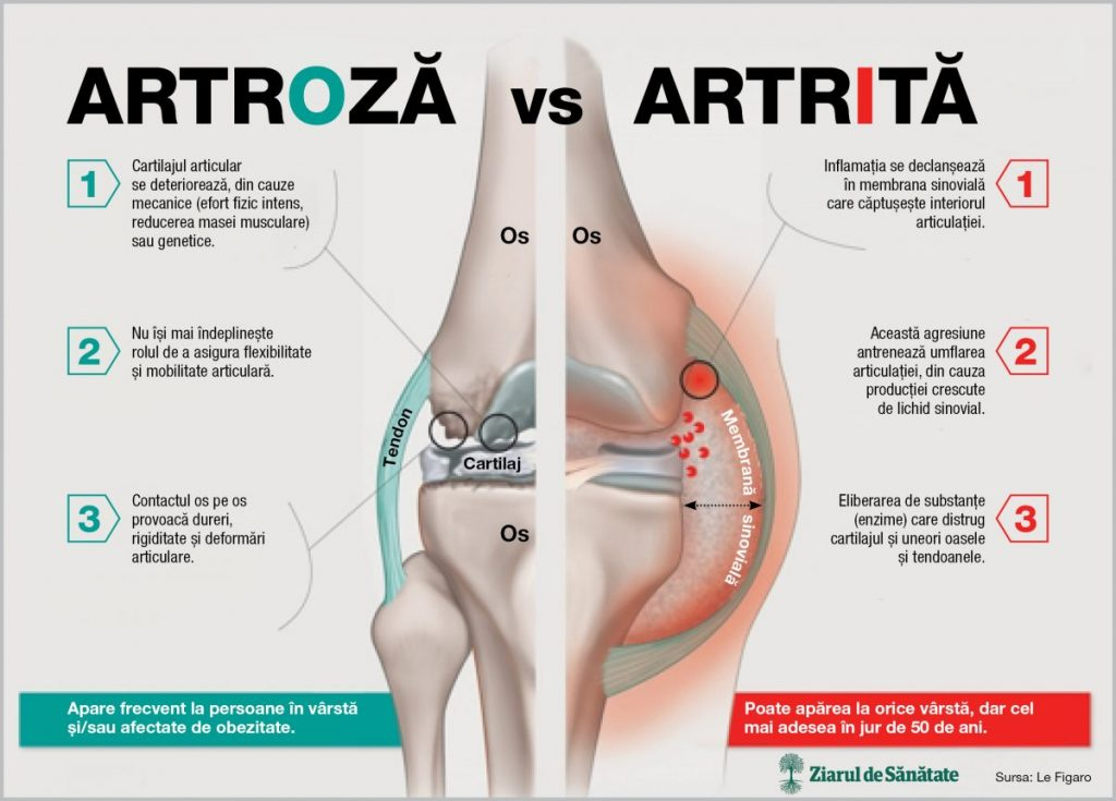 artroza articulațiilor șoldului și a genunchiului tratament)