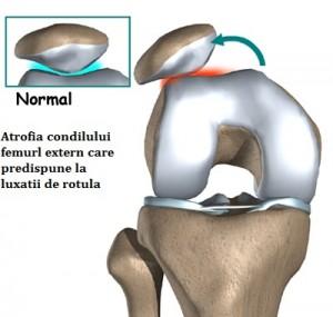 ureaplasma parvum dureri articulare găsește boală la genunchi