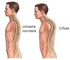 Inestetica și dureroasa cocoașă. De ce apare, cum o tratezi?