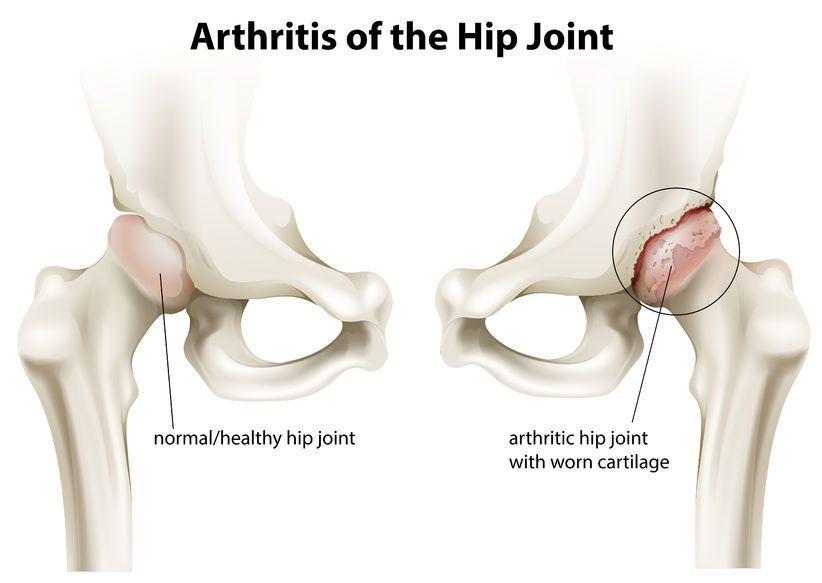 durere în osteoartroza articulației șoldului