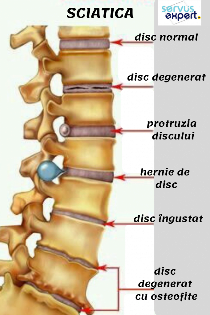Lombar osteochondroză unguent - Osteocondrozei -