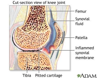 artere psoriazice sinovita genunchiului ruperea ligamentului colateral intern al tratamentului articulației genunchiului