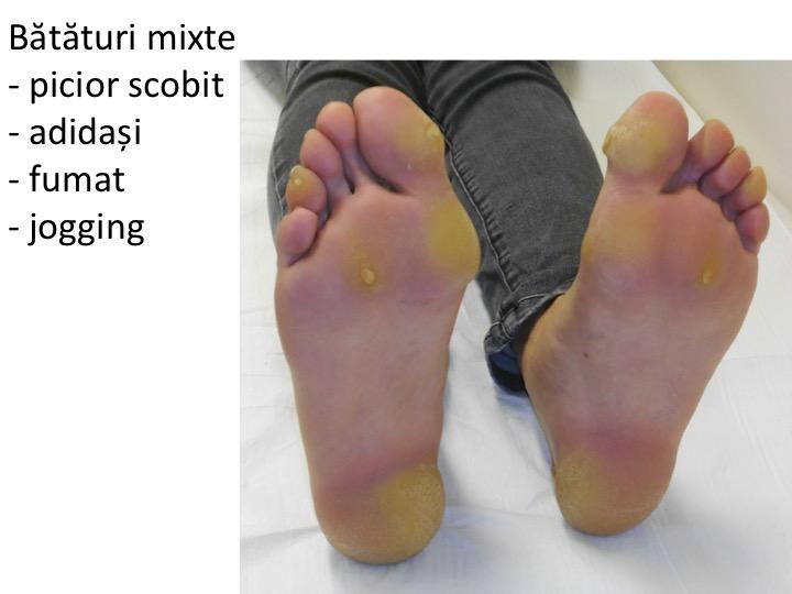 tratament cu brânză de vaci Разрыв передней связки лечения коленного сустава