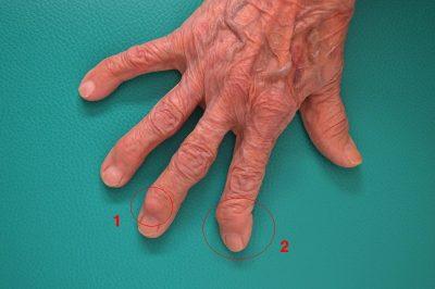 articulația inflamată a tratamentului degetelor mari