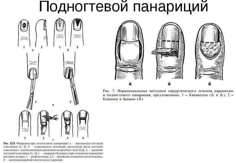 articulația umflată a degetului mare cum se tratează