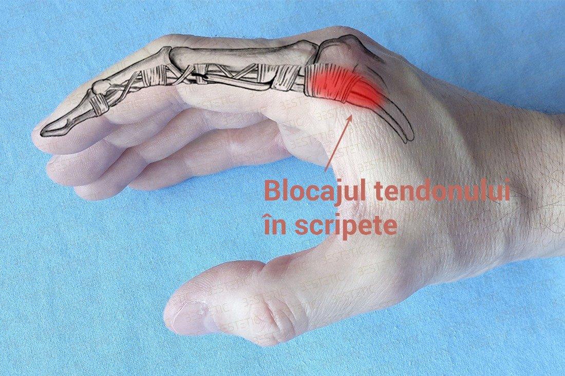 rigiditatea genunchiului după accidentare ozon pentru dureri articulare