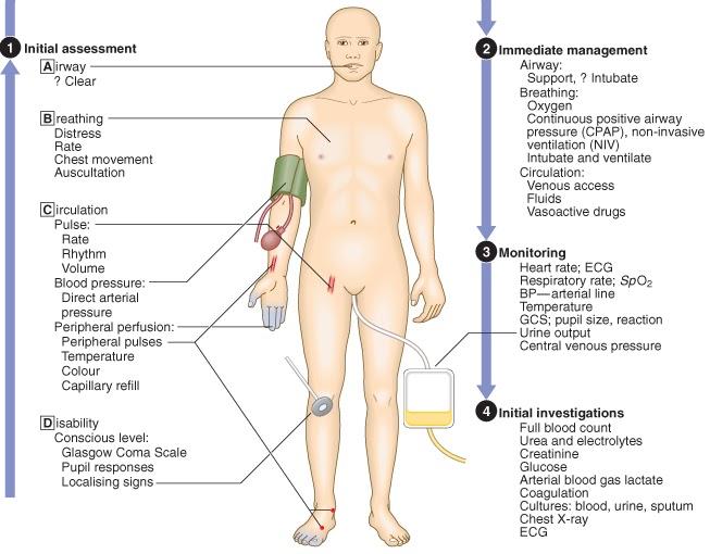 Articulațiile părții stângi ale corpului doare, Свежие комментарии