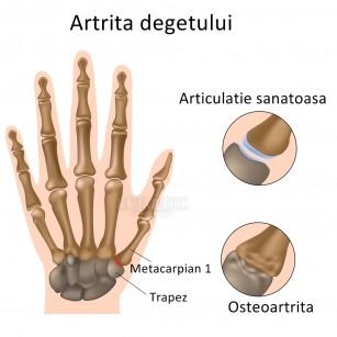 artroza articulațiilor ce este