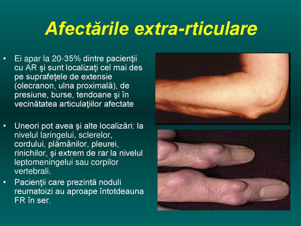 depresie și dureri articulare boli și tratamentul articulațiilor picioarelor