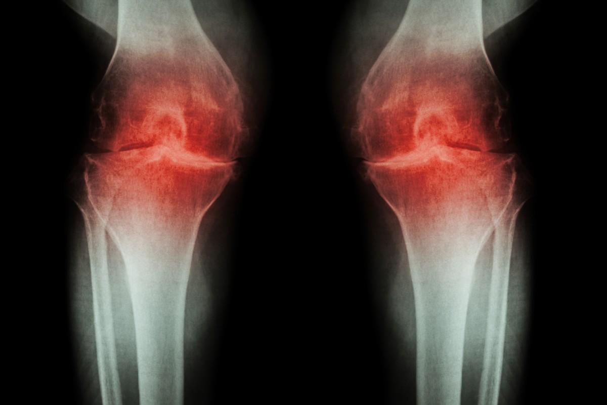 nou în tratamentul artrozei articulațiilor deformând artroza articulațiilor degetelor de la picioare