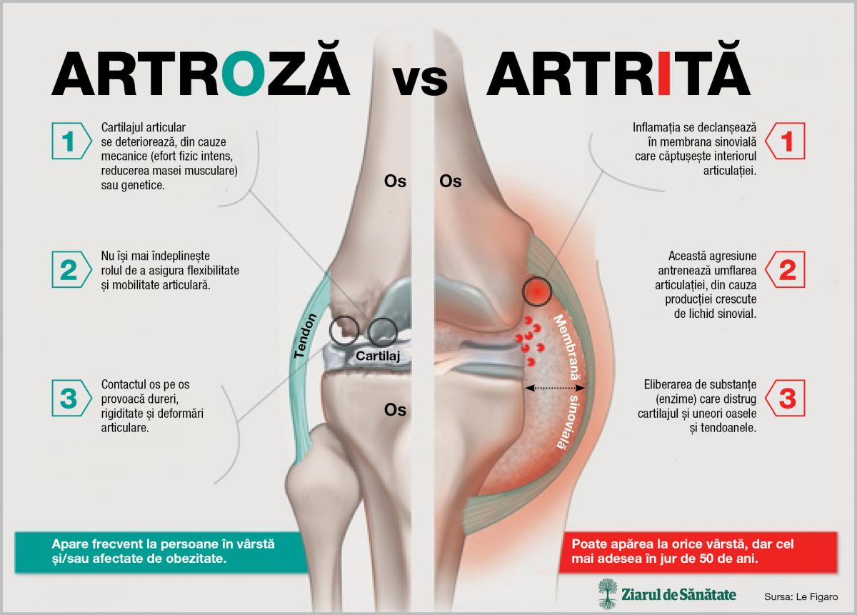 artrita și tratamentul artrozei la copii tratamentul articulațiilor și picioarelor