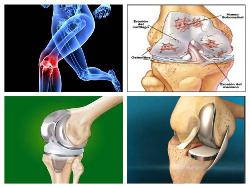 artroza articulației genunchiului și tocurilor