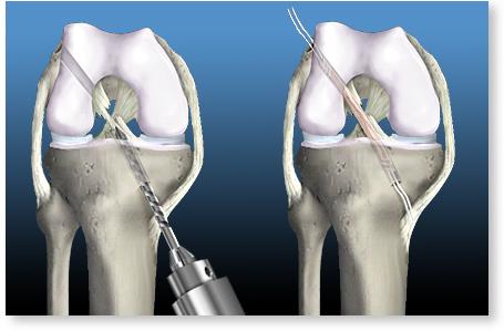inflamația articulației piciorului cum să tratezi unde se tratează epicondilita cotului