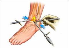 artroza deformantă a gradului 3 al articulației gleznei