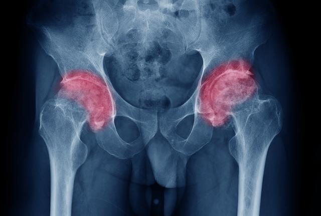 dureri articulare ce unguent cauza durerii la genunchi după alergare